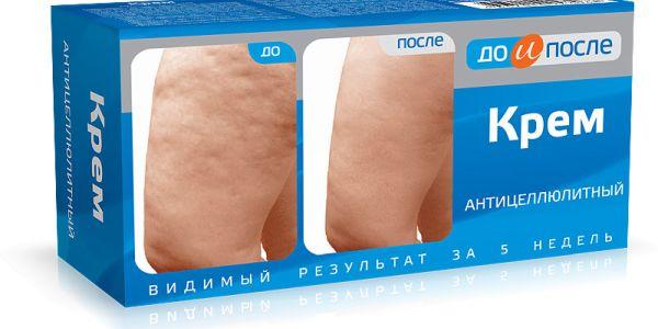 Антицеллюлитный крем: обзор фирм, рецепт в домашних условиях