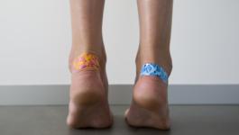 как избавиться от мозолей на ногах