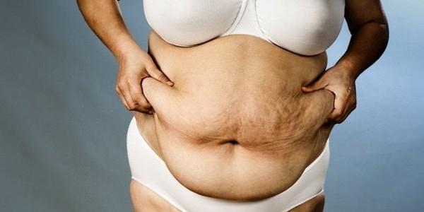абдоминально висцеральное ожирение