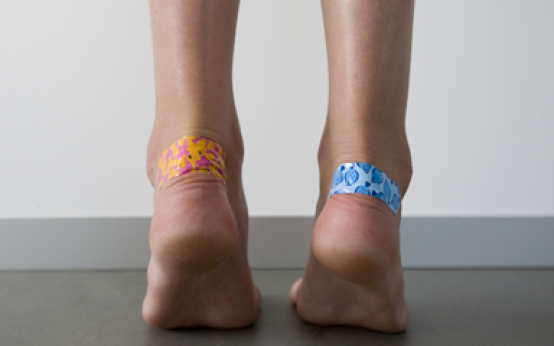 Как избавиться от натоптышей на ногах (ступнях, между пальцами и на них) быстро?