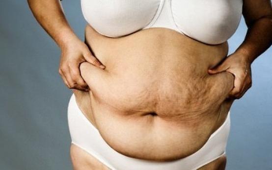 Абдоминальное ожирение у мужчин и женщин: причины и лечение