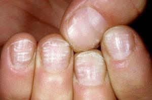 Плохое состояние ногтей